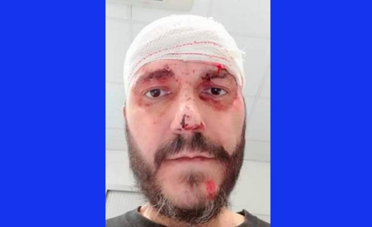 El hombre agredido por los CDR en Barcelona está enfermo de cáncer y tiene una discapacidad